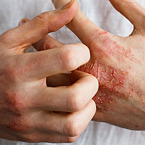 Seeking Solution for Eczema