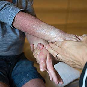 Atopic Dermatitis Challenge