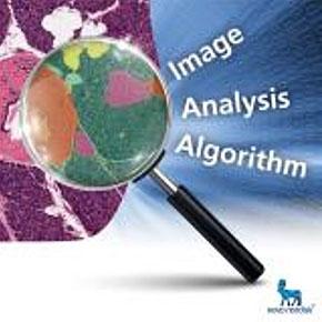 Histologic Image Analysis of Pancreatic Tissue