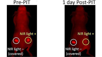 Killing Cancer with Light