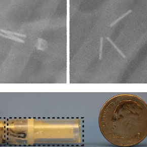 Microneedle Capsule Delivers Insulin Orally