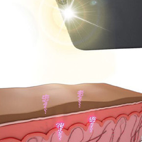 Microneedle Patch Make a Record as it Delivers Vaccine